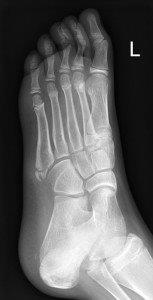 Avulsion fracture at base of fifth metatarsal
