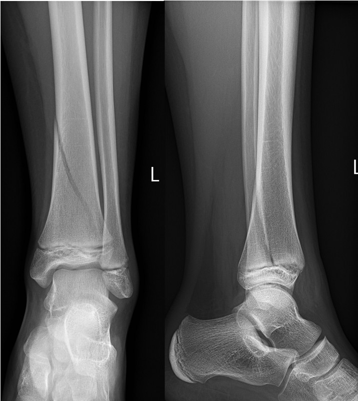 Minimally displaced Salter-Harris II fracture of the distal tibia