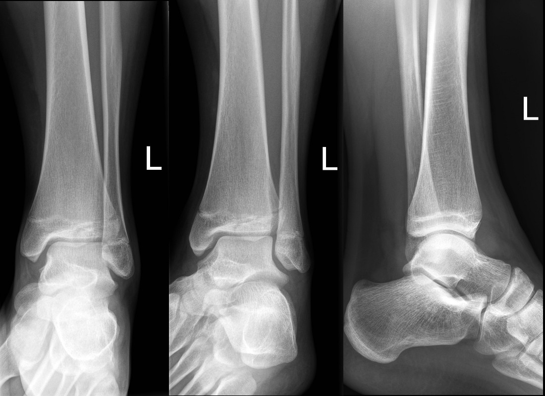 Minimally displaced Tilleaux fracture