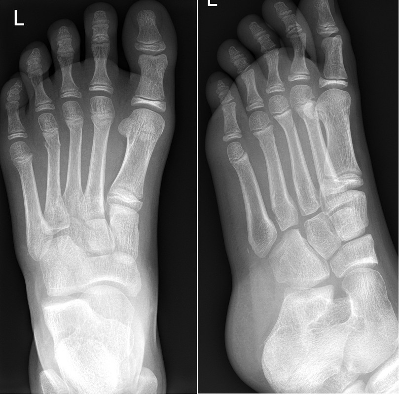 Fractures of distal 2nd-4th metatarsals