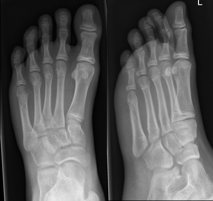 Minimally displaced oblique fracture of 5th metatarsal