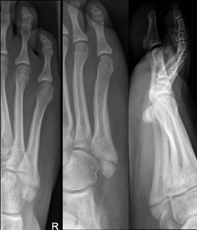 Fracture of base of 5th metatarsal following inversion injury