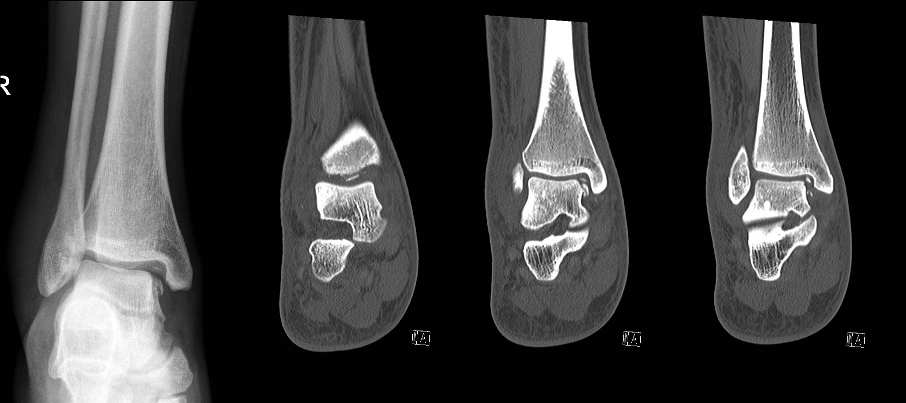 Talar dome fracture. X-ray (left) looks simple but CT shows multiple intra-articular bony fragments