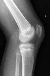 Patella sleve fracture. The patient clinically had difficulty extending the knee