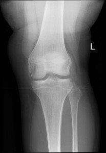 An x-ray avulsion fracture of lateral tibial condyle associated with ACL and medical meniscus injuries