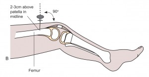 Intraosseous access of femur anatomy