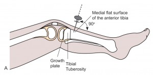 Intraosseous access of tibia anatomy