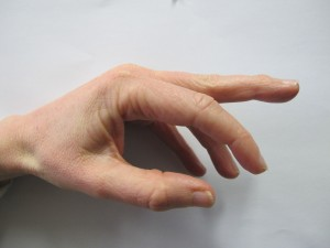 Shows a middle finger with mallet deformity