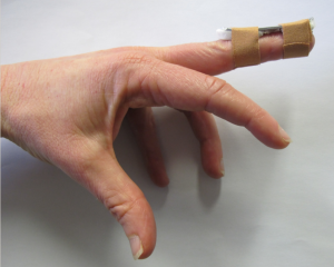 Splint affixed to the dorsum of the digit by two separate tapes.