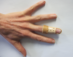 Stax splint fixed with adhesive tape to the finger just distal to the PIP joint.