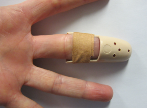 Stax splint volar aspect fixed with adhesive tape