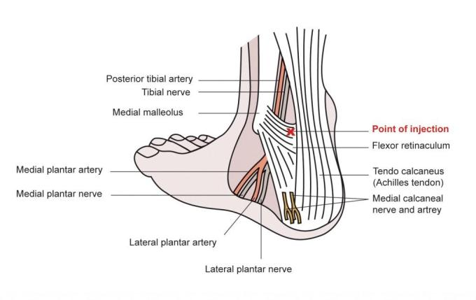 Posterior tibial nerve block injection site anatomy