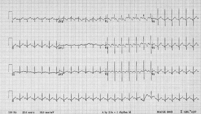ECG, 2 month old