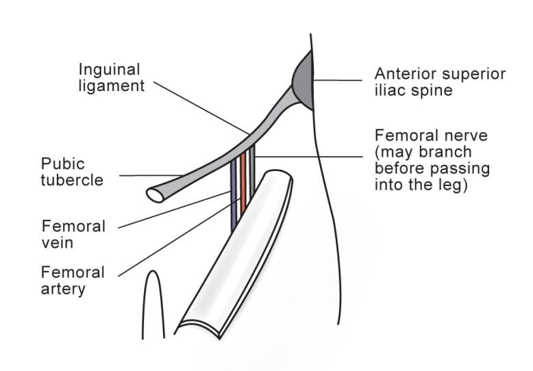 Femoral Nerve Block