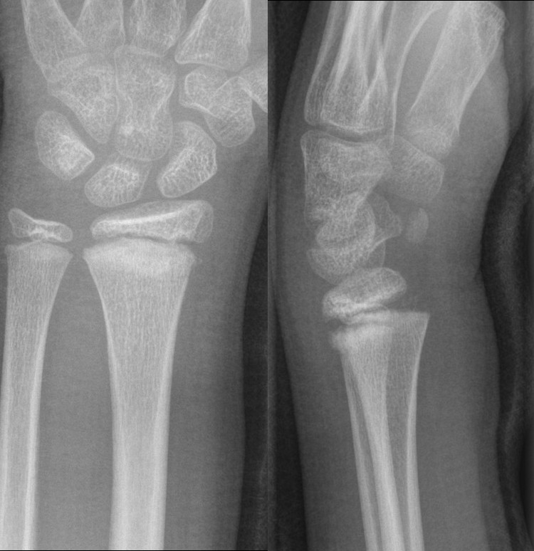 Fractures - Distal forearm or wrist