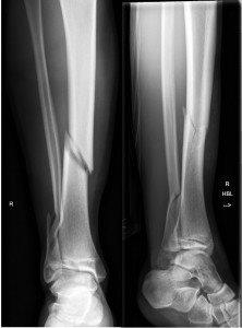 Fractures - Lower leg